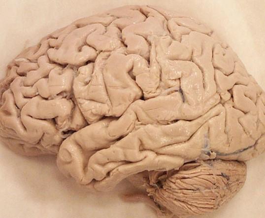 Neurocourses UK - Human Brain Anatomy Courses - Home